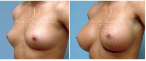Aumento Mamario con Implantes